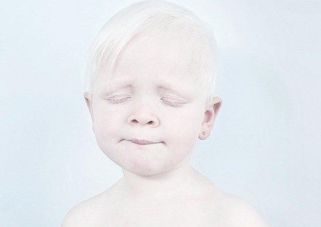 Albinizm nedir ?