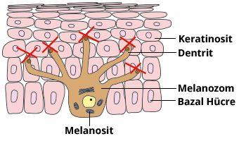 Melanosit nedir
