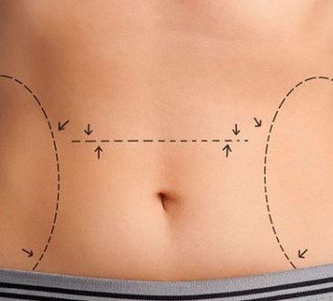 Liposuction nedir ?